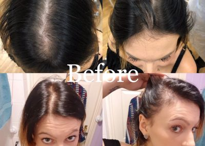 Scalp Pigmentation for Women