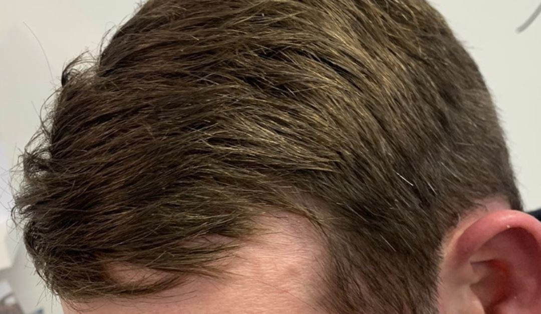 Guest Blog – Our Clients anonymous blog on his Hair Loss & how Hair to Ware helped