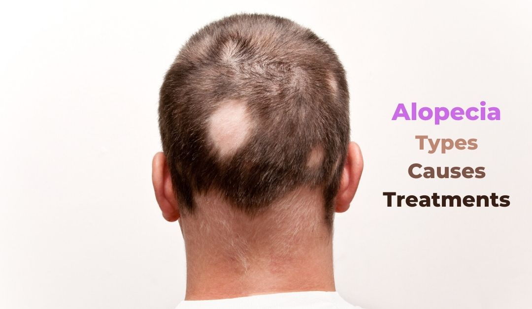 Alopecia – a look at this hair loss condition and its various forms