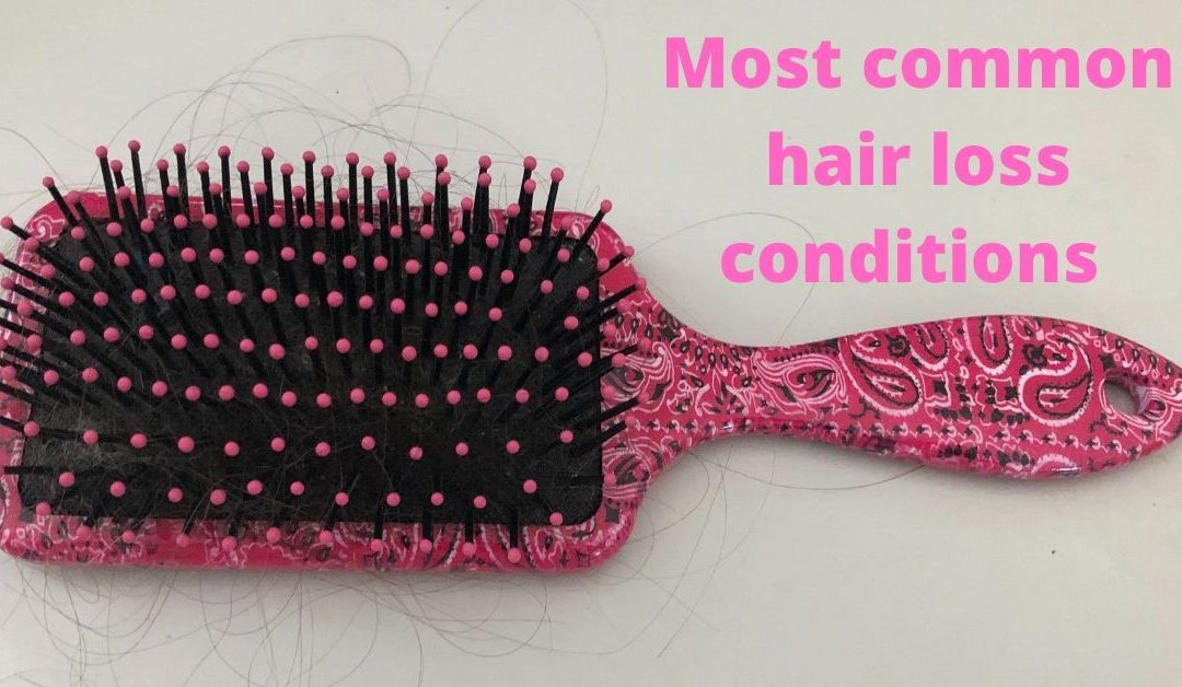 The most common hair loss conditions