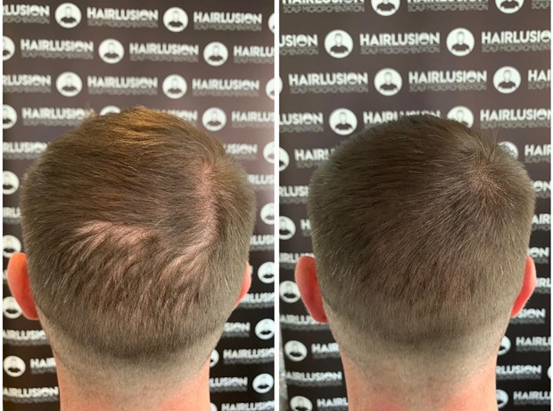 Scalp Micro Pigmentation on the back of a male head | Hair to Ware