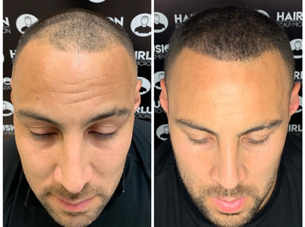 Scalp Micro pigmentation on a balding head | Hair to Ware