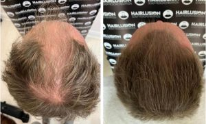 scalp micropigmentation treatment