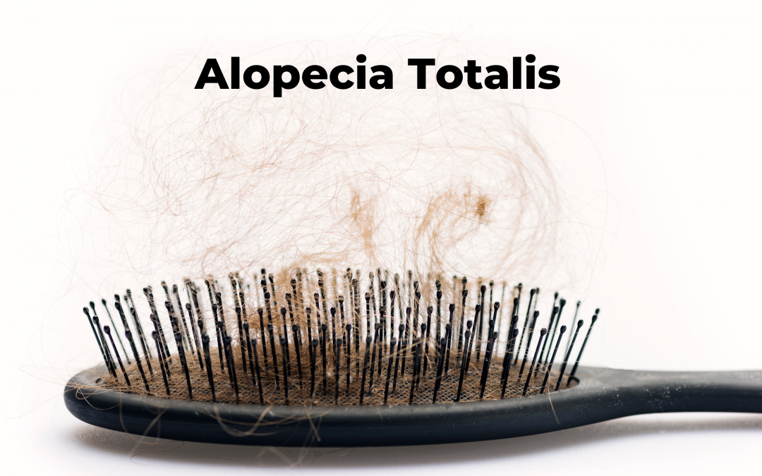 Alopecia Totalis: Causes, Symptoms and Treatment